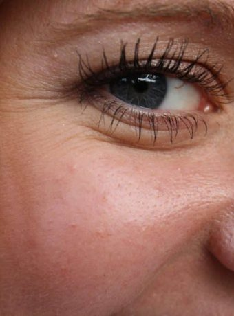 best treatment for under eye wrinkles